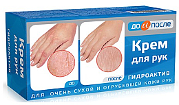 Парфюмерия и Козметика Крем за ръце за много суха и загрубяла кожа - Do i Posle