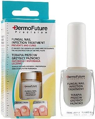 Противогъбична терапия за нокти - DermoFuture Course Of Treatment Against Nail Fungus — снимка N1