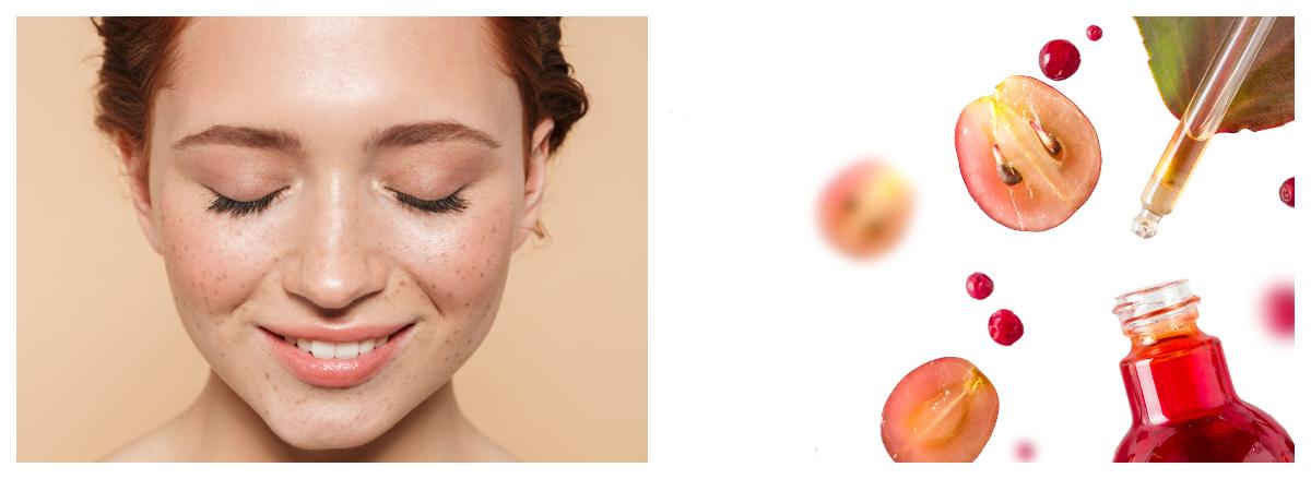 Ролята на стволовите клетки в козметиката