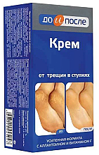 Парфюмерия и Козметика Крем за крака против напукване - Do i Posle